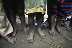 arabic.zakat.org - مجاعة القرن الإفريقي